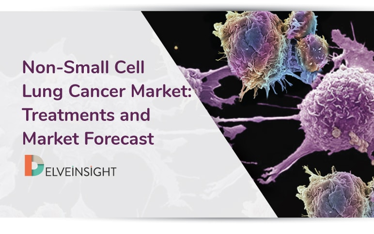 Non-Small Cell Lung Cancer Market