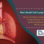 Non-Small Cell Lung Cancer Market Insights