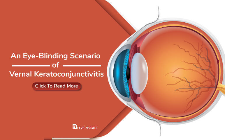 Vernal-keratoconjunctivitis-VKC-Market-Size-and-Share