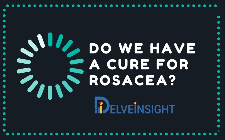Rosacea Treatment Market | Rosacea Pipeline Therapies