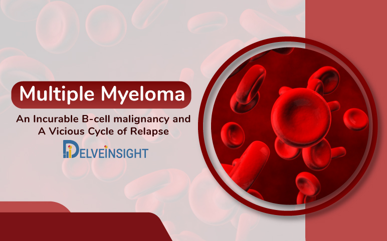 Multiple Myeloma: An Incurable B-cell malignancy and A Vicious Cycle of Relapse
