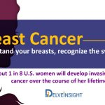 Breast Cancer Signs Symptoms Treatments
