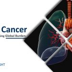 lung-cancer-symptoms-risk-factors-and-treatment-options