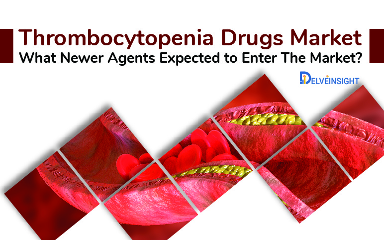 Thrombocytopenia drugs market | Drug-Induced Thrombocytopenia