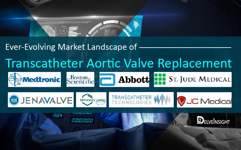 transcatheter-aortic-valve-replacement-implantation-market-trends