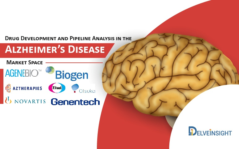 alzheimers-disease-pipeline-therapies-drugs-therapeutics